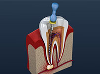 Root canal dental services