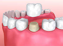 Porcelain dental crowns being fitted