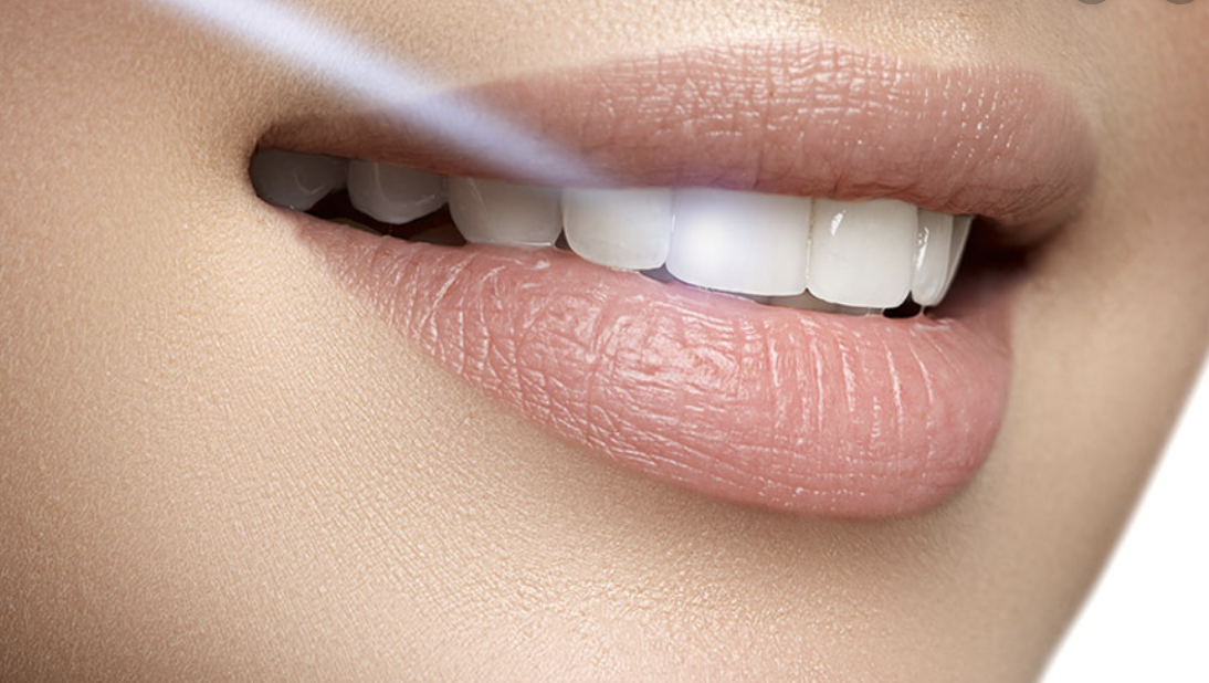 Close up on woman's whitened teeth
