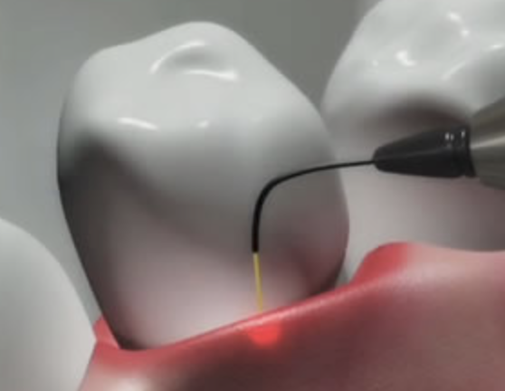An example of laser dentistry