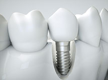 traditional-titanium-implants